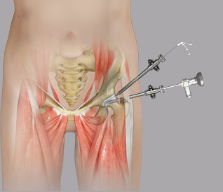 Hip Arthroscopy-Clinical American Hip Institute Research Foundation