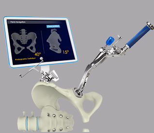Robotic Guidance in Total Hip Arthroplasty American Hip Institute Research Foundation